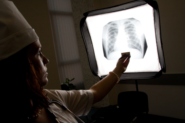 doctor with chest x ray