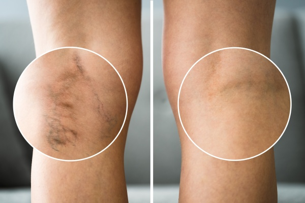 before after cellulite inflammation legs treatment