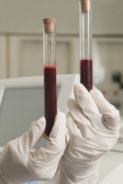 lab technician holding blood samples in