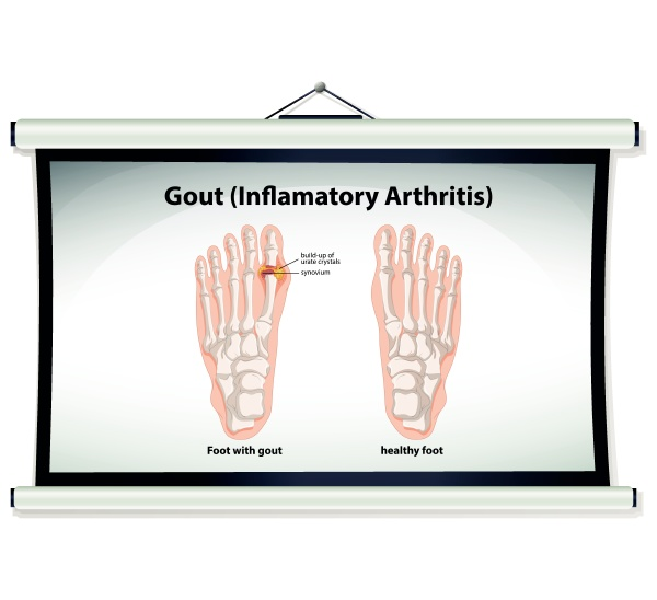 chart showing gout in human