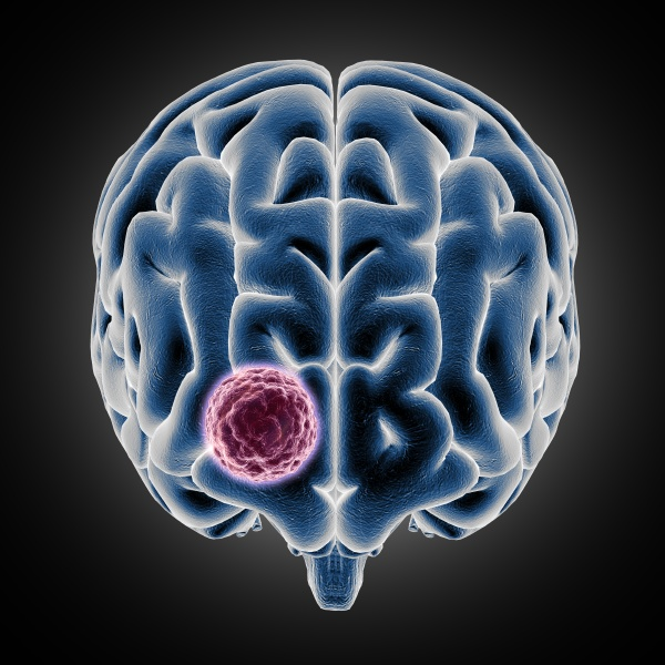 3d medical image showing brain with
