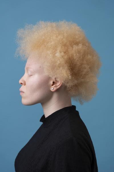 studio portrait of albino woman with