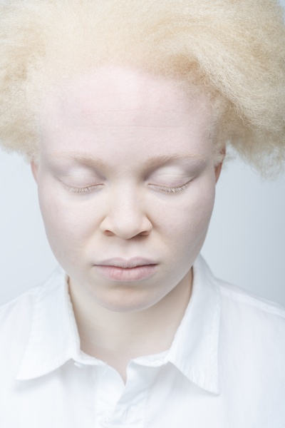 close up of albino woman with