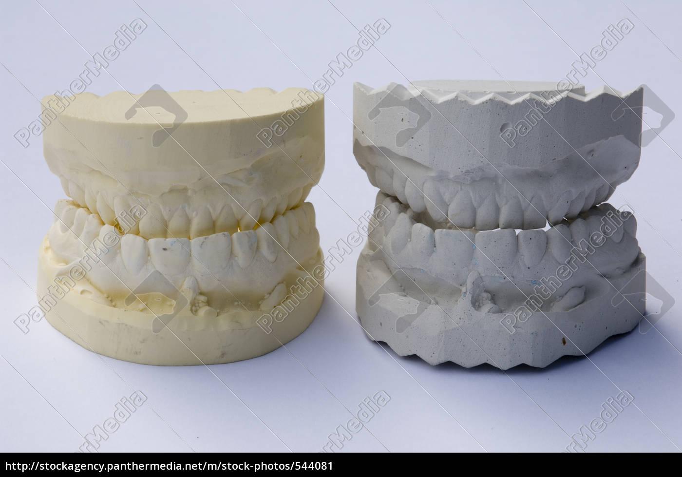 dentures - 544081