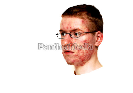 initiation of treatment with isotretinoin acne