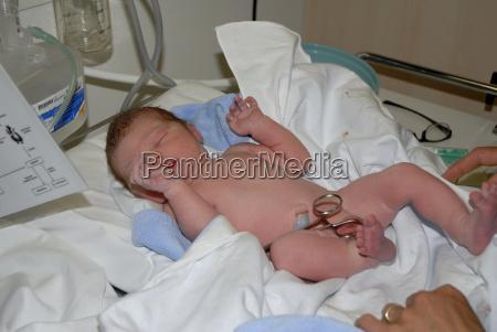 newborn, examination - 635728