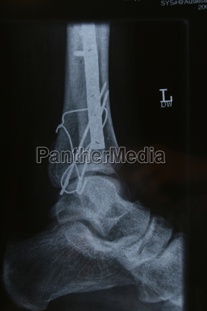 fracture - 640821