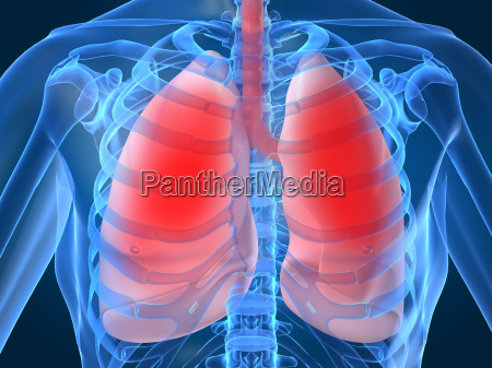lung infection
