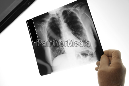 doctor holding an x ray image