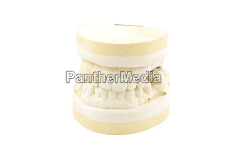 dental prosthesis study model on white