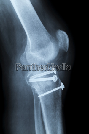 human knee laterally x ray after
