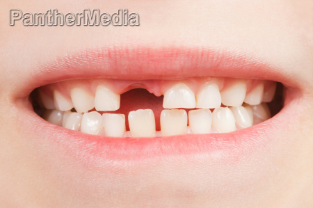 child with tooth gap