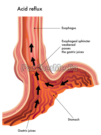 medical illustration of the effects of