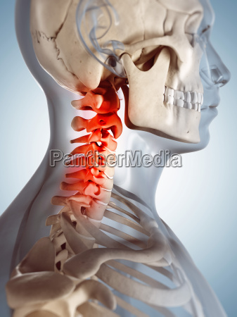 3d rendered illustration of a painful
