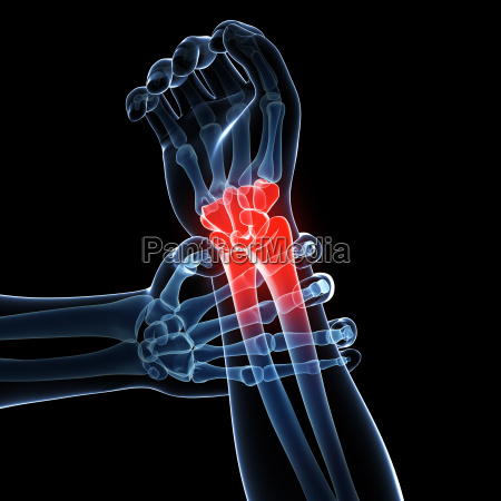 3d rendered illustration painful armwrist