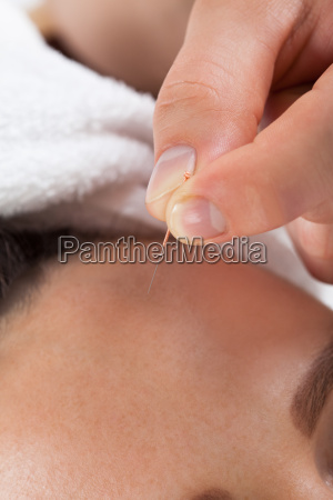 woman receiving acupuncture treatment at spa