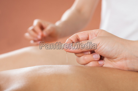 couple, receiving, acupuncture, treatment, at, spa - 12555266