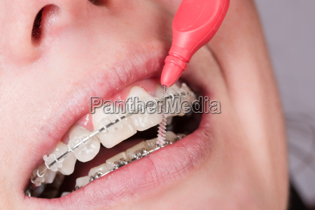 mouth with braces is cleaned with