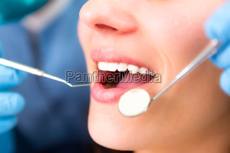 details of white teeth of a
