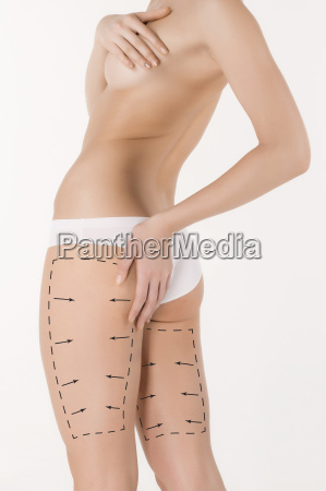 cellulite removal plan black markings on