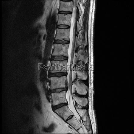 mrt of a herniated disc of