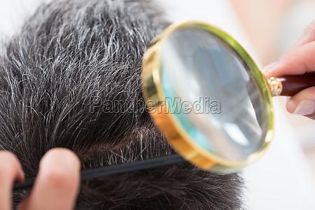 dermatologist checking patients hair