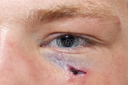bleeding in the eyelid area
