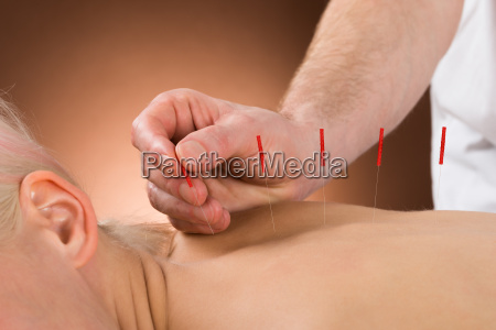 young person receiving acupuncture treatment