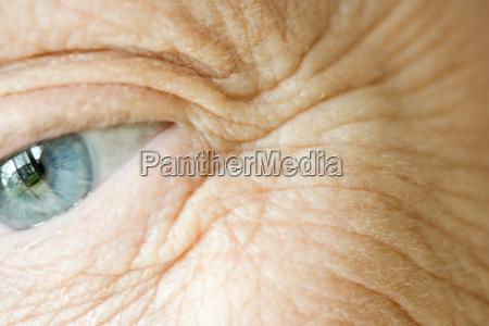 eye wrinkles