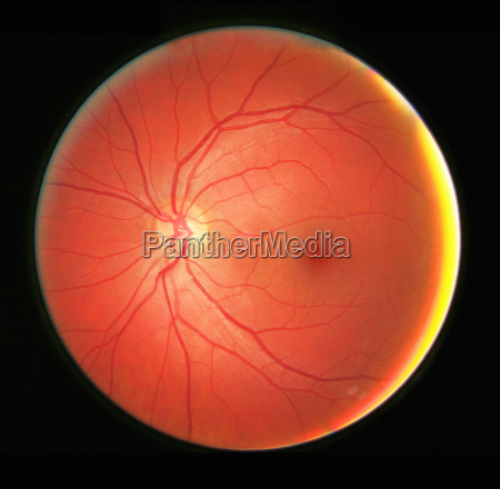 fundus photograph of the left eye
