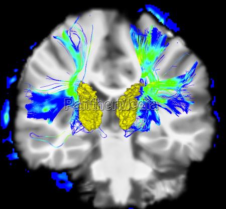 coronal view of a human brain