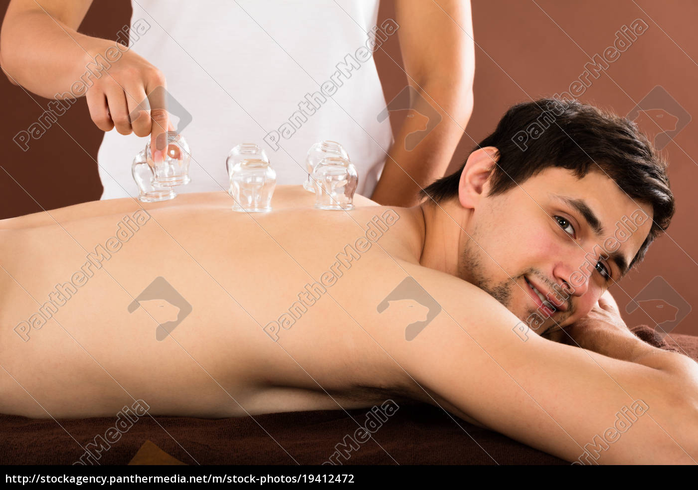 man, receiving, cupping, treatment, on, back - 19412472