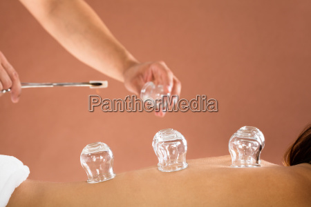 therapist, hand, giving, cupping, treatment, to - 19412484