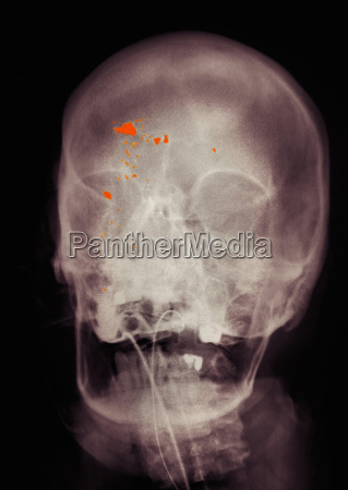colorized x ray of skull showing