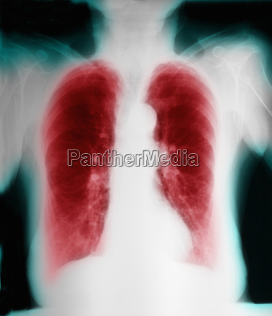 x ray of chronic obstructive pulmonary