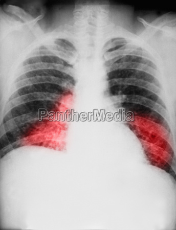 chest x ray of histoplasmosis fungal