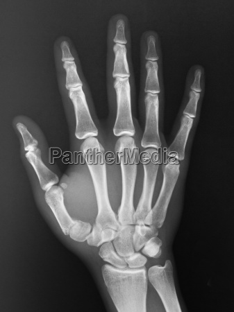normal hand x ray of a