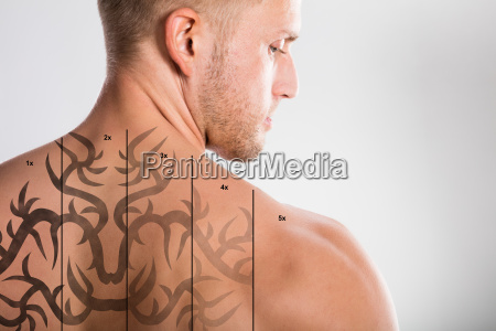 laser tattoo removal on mans back