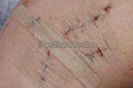 taped suture close up