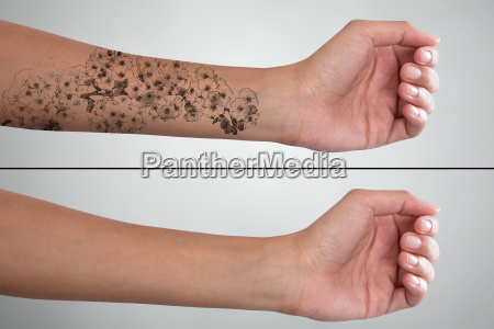 womans hand before and after laser