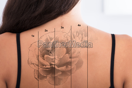laser tattoo removal on womans back