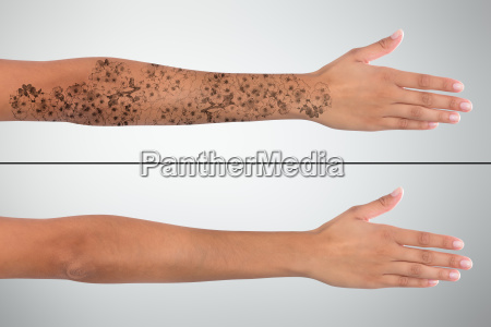 woman's, hand, before, and, after, laser - 23603588
