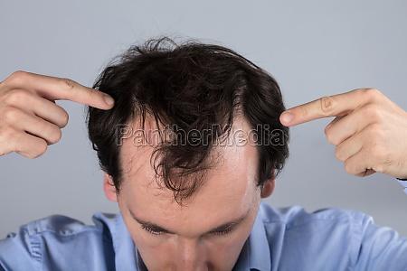 man with hair loss symptoms