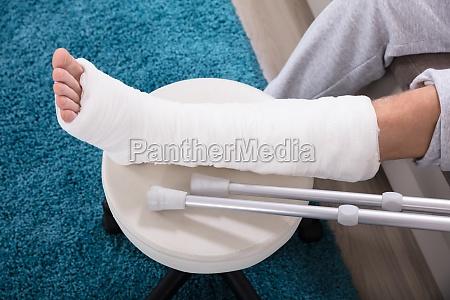 mans broken leg