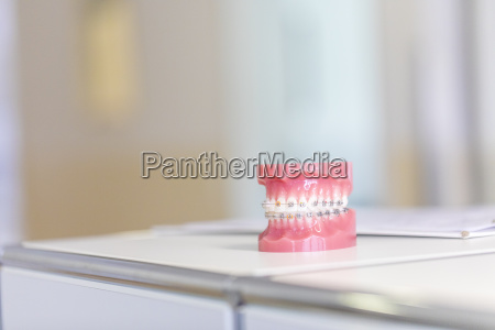 tooth model with braces in dental
