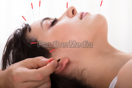 therapist performing acupuncture treatment on woman