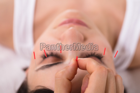 beautiful, woman, getting, acupuncture, treatment - 25333374
