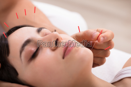 beautiful, woman, getting, acupuncture, treatment - 25333384