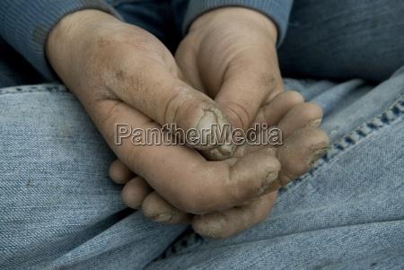 close up of swollen battered hands