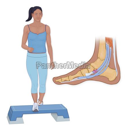 os trigonum pain syndrome is associated
